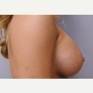 25-34 year old woman treated with Breast Implants after 3109002