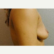 25-34 year old woman treated with Breast Implants before 3109002