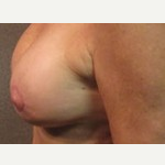 55-64 year old woman treated with Breast Lift after 3088306