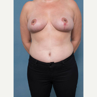 35-44 year old woman treated with Breast Reduction after 3436267