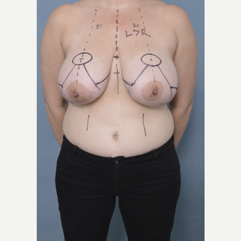 35-44 year old woman treated with Breast Reduction before 3436267
