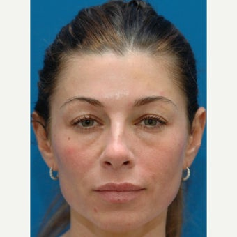 43 year old woman treated with lower blepharoplasty with fat repositioning
