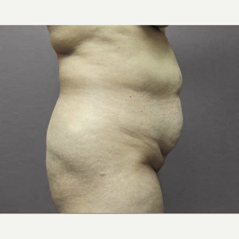 35-44 year old woman treated with Tummy Tuck before 3226573