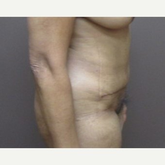 35-44 year old woman treated with Tummy Tuck after 3226573