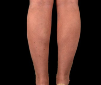25-34 year old woman treated with Vaser Liposuction after 1953206