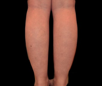 25-34 year old woman treated with Vaser Liposuction before 1953206