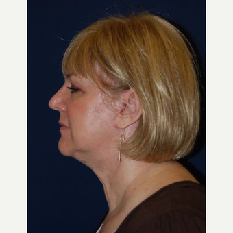 55-64 year old woman treated with Facelift after 3370692