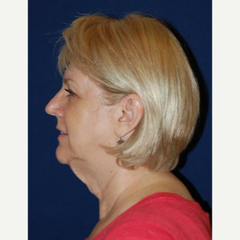 55-64 year old woman treated with Facelift before 3370692