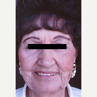 75 and up year old woman treated with Chemical Peel before 3543854