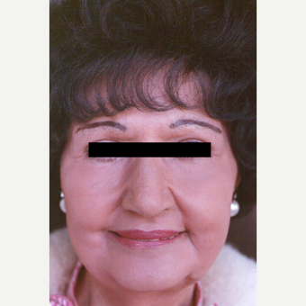 75 and up year old woman treated with Chemical Peel after 3543854