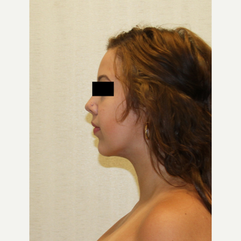 18-24 year old woman treated with Chin Implant after 3695701