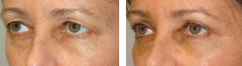 Female Brow Lift and Upper blepharoplasty before 1167828