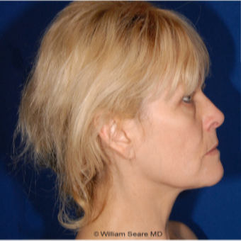 Cheek Augmentation with Natural Fat Transfer before 3104789