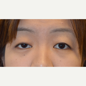 Young Asian female, underwent RIGHT upper eyelid ptosis repair, using internal scarless technique.