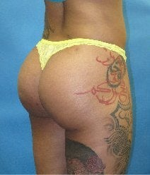 Buttock augmentation with fat grafting after 1420293