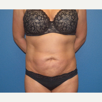 35-44 year old woman treated with Tummy Tuck before 3595827