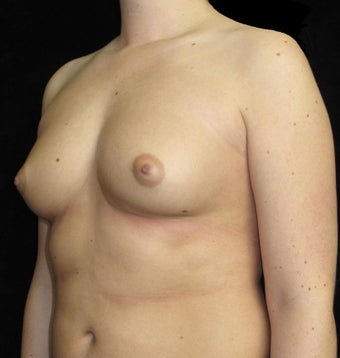 21 year old woman with asymmetry treated with Breast Augmentation 3092590