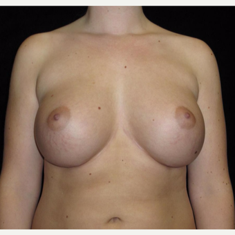 21 year old woman with asymmetry treated with Breast Augmentation after 3092590