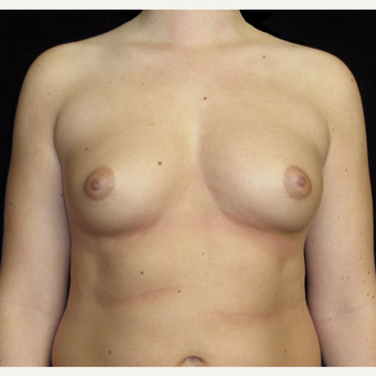 21 year old woman with asymmetry treated with Breast Augmentation before 3092590