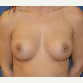 18-24 year old woman treated with Breast Augmentation after 3136568