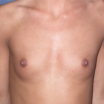 18-24 year old woman treated with Breast Augmentation before 3136568