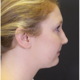 25-34 year old woman treated with Chin Liposuction after 3065529