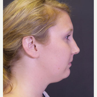 25-34 year old woman treated with Chin Liposuction before 3065529