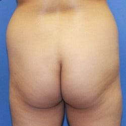 35-44 year old woman treated with Brazilian Butt Lift before 1860555