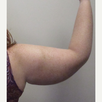 25-34 year old woman treated with Arm Lift before 3253398
