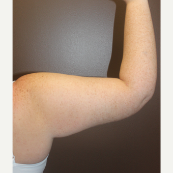 25-34 year old woman treated with Arm Lift after 3253398