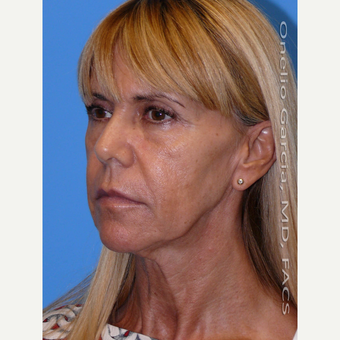 45-54 year old woman treated with Facelift before 3008503