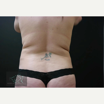 35-44 year old woman treated with Liposuction before 3591171