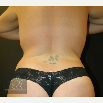 35-44 year old woman treated with Liposuction after 3591171