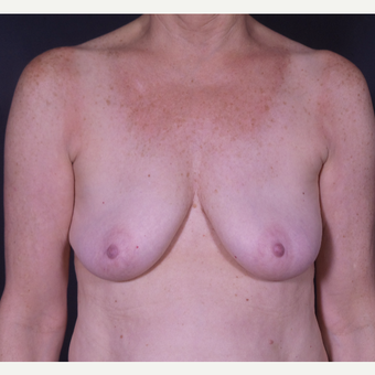 55-64 year old woman treated with Breast Implant Removal after 3065570