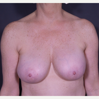 55-64 year old woman treated with Breast Implant Removal before 3065570