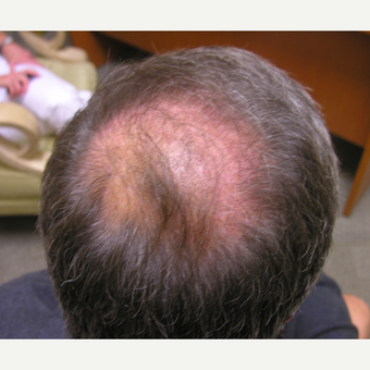 45-54 year old man treated with Hair Loss Treatment before 3506357