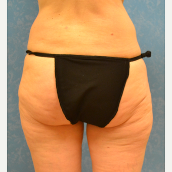 57 year old female addressing gradual weight gain issues in thighs and buttock before 3731713