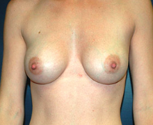 Breast Implants after 3545099