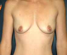 Breast Implants before 3545099