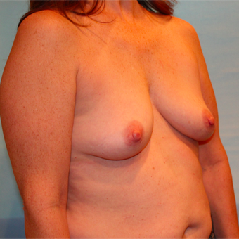 48 year old woman treated with Breast Augmentation before 3073187