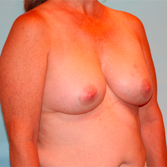 48 year old woman treated with Breast Augmentation after 3073187