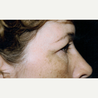 45-54 year old woman treated with Eyelid Surgery before 3236411
