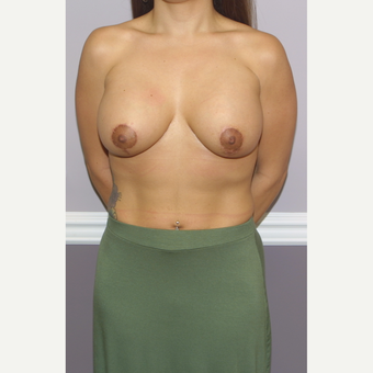 18-24 year old woman treated with Breast Lift with Implants after 3502328