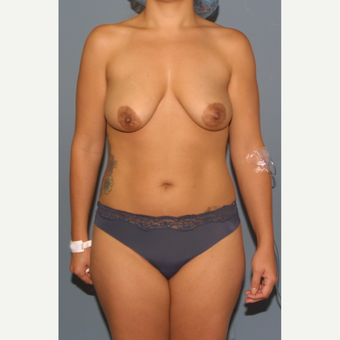 18-24 year old woman treated with Breast Lift with Implants before 3502328