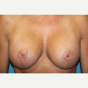 45-54 year old woman treated with Breast Lift after 3768749