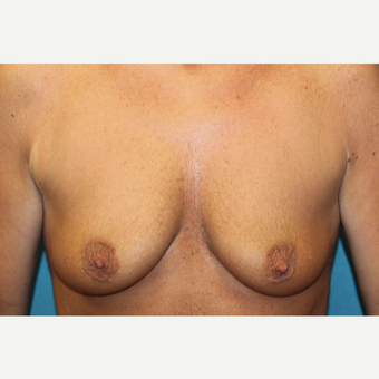 45-54 year old woman treated with Breast Lift before 3768749