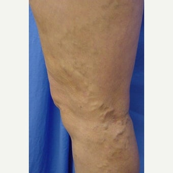Bulging leg veins treated with Sclerotherapy after 1672460