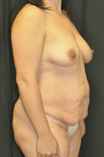 35-44 year old woman treated with Mommy Makeover before 1232528
