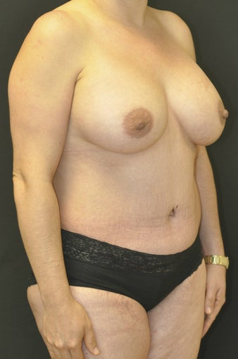 35-44 year old woman treated with Mommy Makeover after 1232528