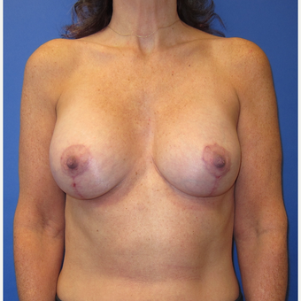 45-54 year old woman treated with Breast Lift with Implants (339cc) after 3760031